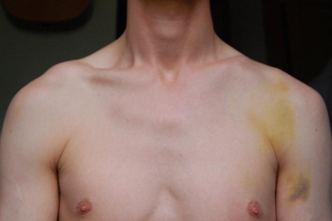 Broken Collarbone Recovery