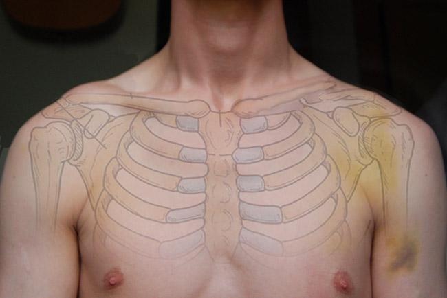Broken Collarbone